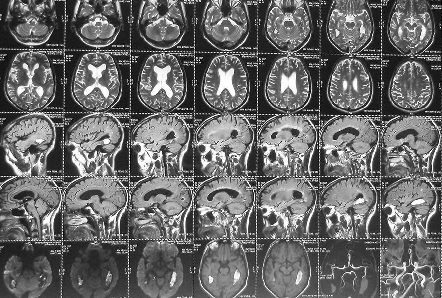 снимок головы МРТ