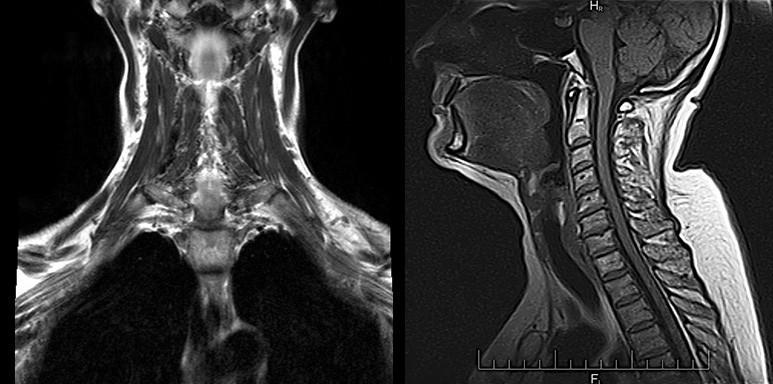 Что показывает МРТ шеи