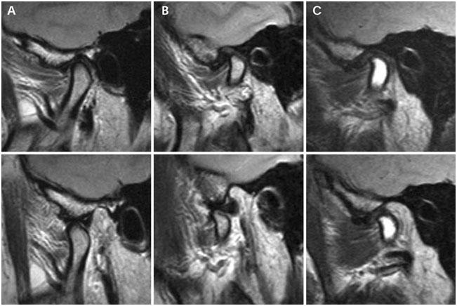височно-нижнечелюстной сустав патология на рентгенограмме