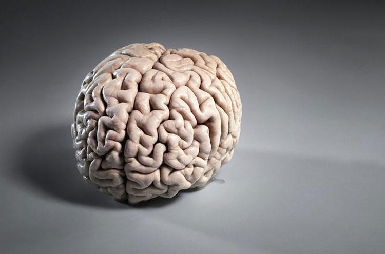 Где провести МРТ головного мозга в Красногорске?