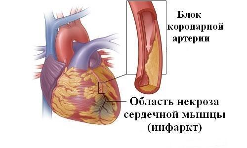 infarkt-serdtsa-i-seks