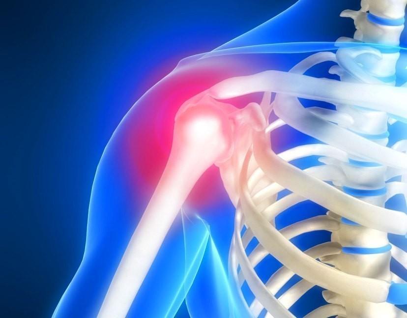 Где сделать МРТ плечевого сустава в Москве?