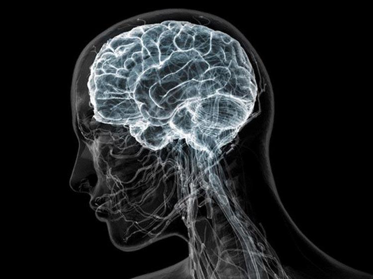 МРТ мозга в Москве