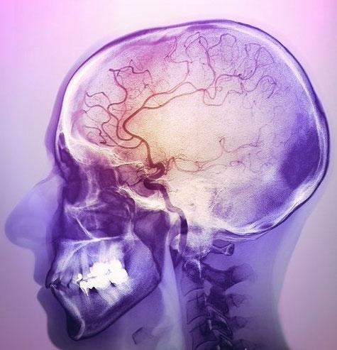 МРТ сосудов головного мозга в Москве