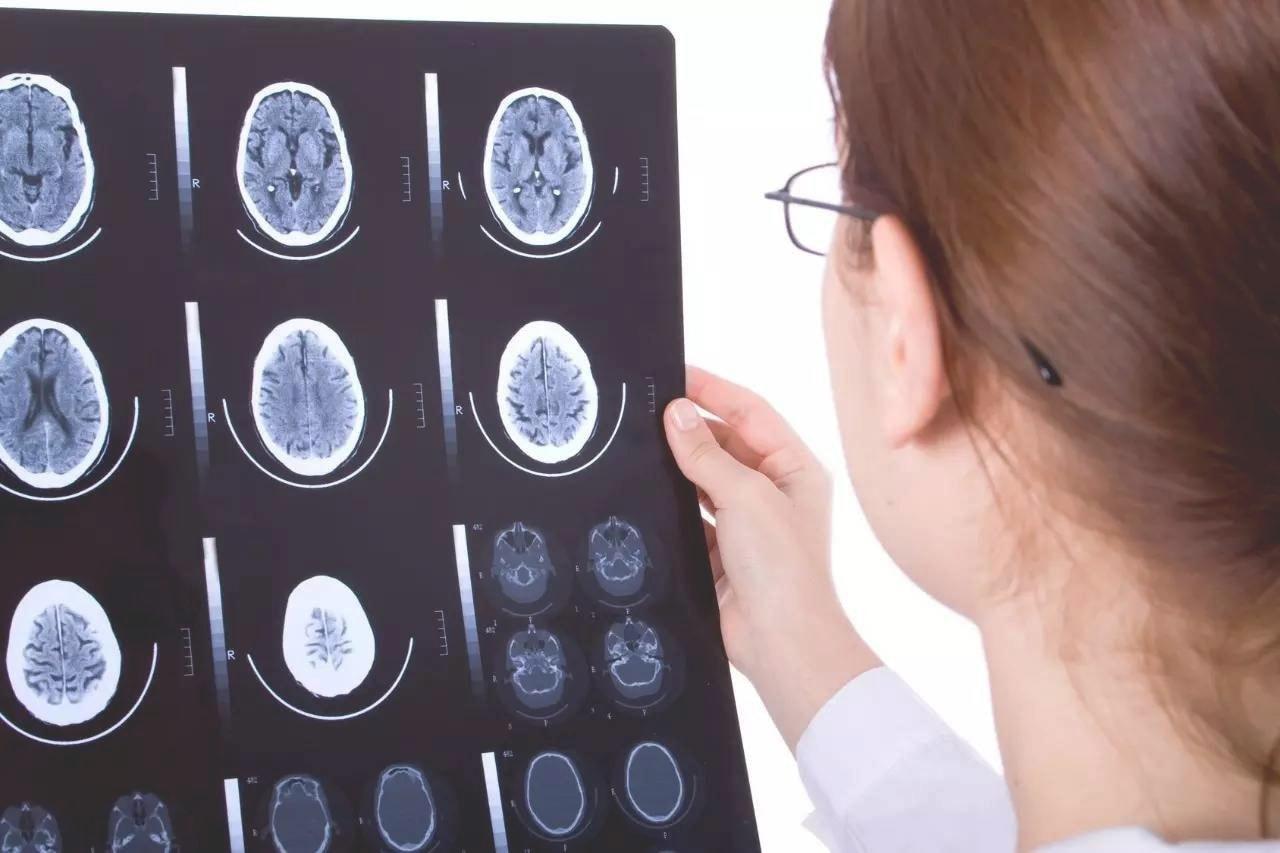 Невролог в Москве: особенности услуг специалиста