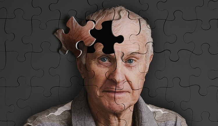 Особенности заболевания Альцгеймера
