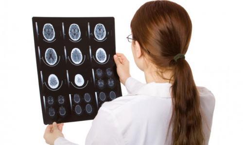 Сделать МРТ мозга в Москве от 3 500 рублей
