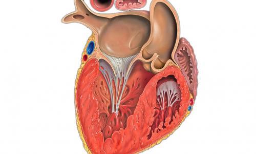 Гипертрофия левого желудочка: диагностика, профилактика и лечение