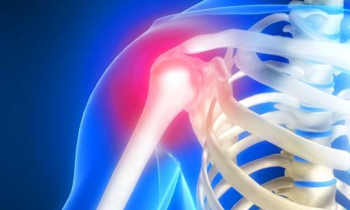 МРТ плечевого сустава в Москве от 4 500 рублей