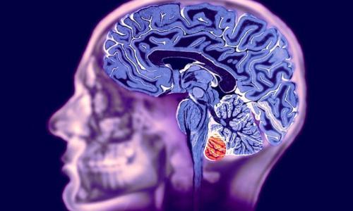 МРТ головного мозга в столице от 3 500 рублей