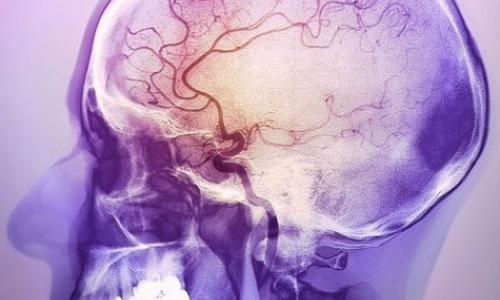 МРТ сосудов головного мозга в Москве от 4 000 рублей