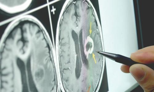 Запишитесь на прием невролога в СЗАО в диагностическом центре в Тушино