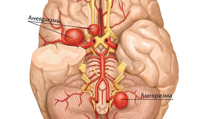 Что такое аневризма головного мозга?