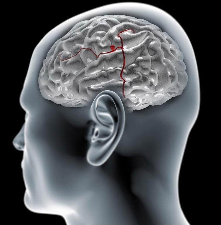 Аневризма сосудов головного мозга