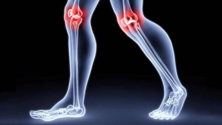 Артрит — особенности, симптомы и лечение заболевания