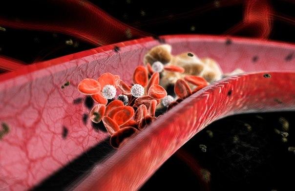 Атеросклероз сосудов сердца — симптомы, диагностика и лечение