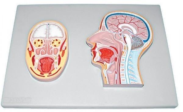 Где сделать МРТ головы в Москве?