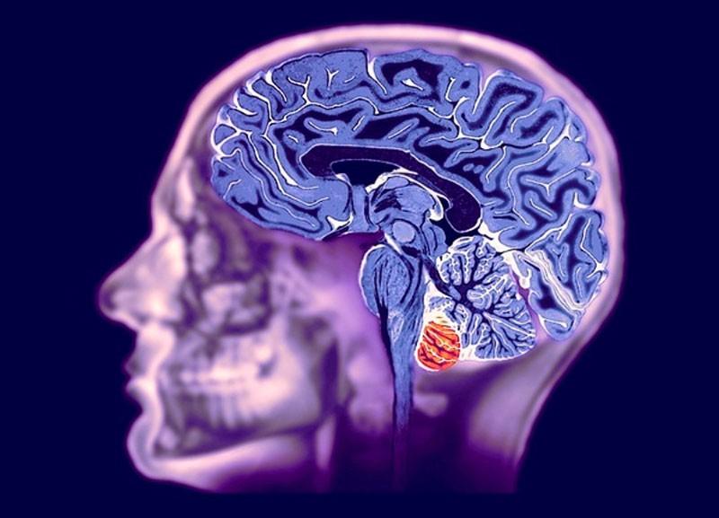 Где сделать МРТ головного мозга в Москве? В нашем центре
