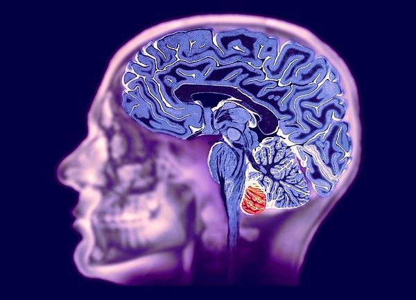 МРТ мозга на современном оборудовании