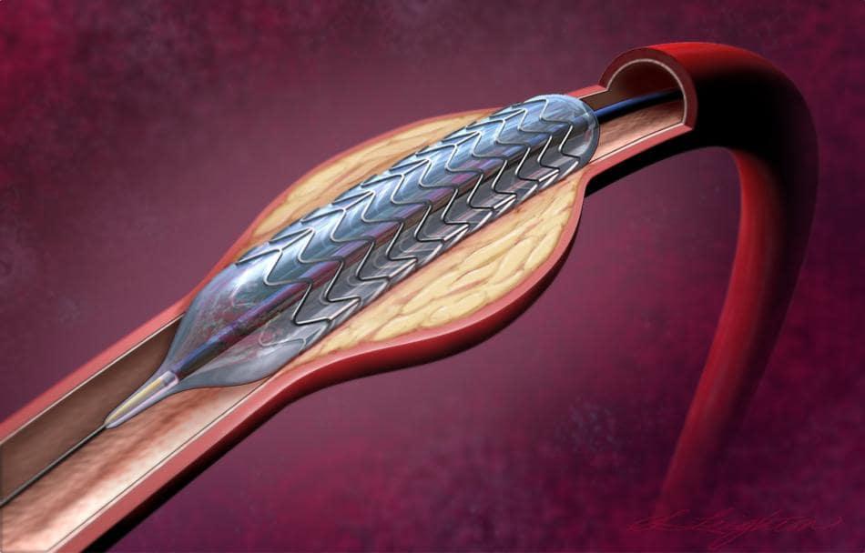 МРТ после стентирования сосудов сердца