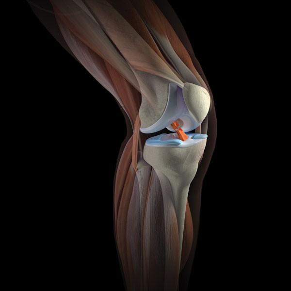 Где лучше сделать МРТ коленного сустава?