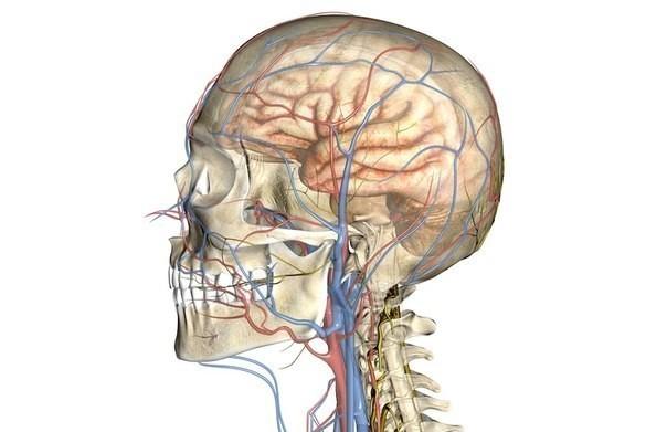 МРТ сосудов головного мозга и шеи