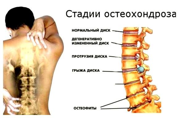остеохондроз грудного отдела спины эта