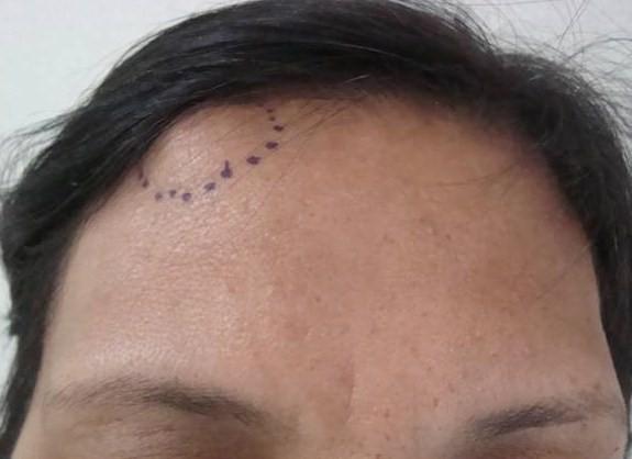 Остеома лобной кости: симптомы, диагностика, лечение, реабилитация