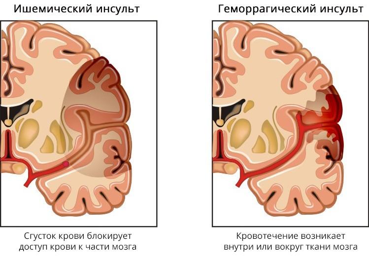Причины, симптомы и лечение инсульта головного мозга