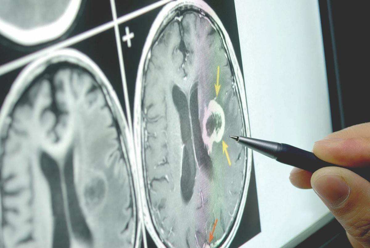 Прием невролога в СЗАО