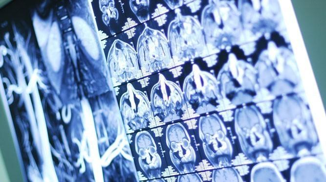 Принцип работы КТ и МРТ. Какой метод лучше выбрать?