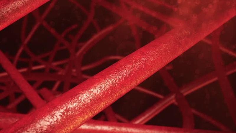 Закупорка кровеносных сосудов: особенности течения и лечения болезни