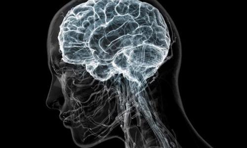 МРТ мозга в Москве по адресу: Волоколамское шоссе, дом 95