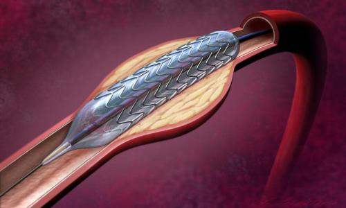 Можно ли делать МРТ после стентирования сосудов сердца