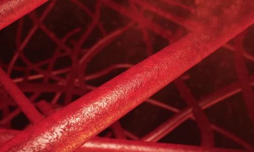 Симтомы, диагностика и лечение закупорки кровеносных сосудов
